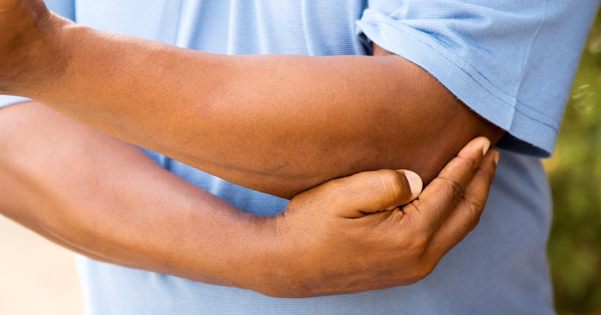 Gout In Elbow  What You Need To Know About Elbow Gout